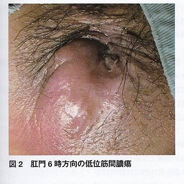 肛門 周囲 膿瘍
